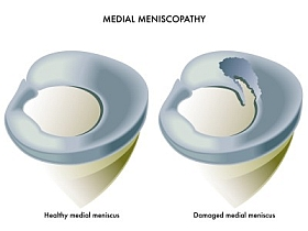 Meniskuschirurgie