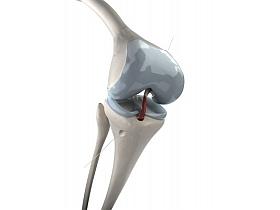 Kreuzbandchirurgie